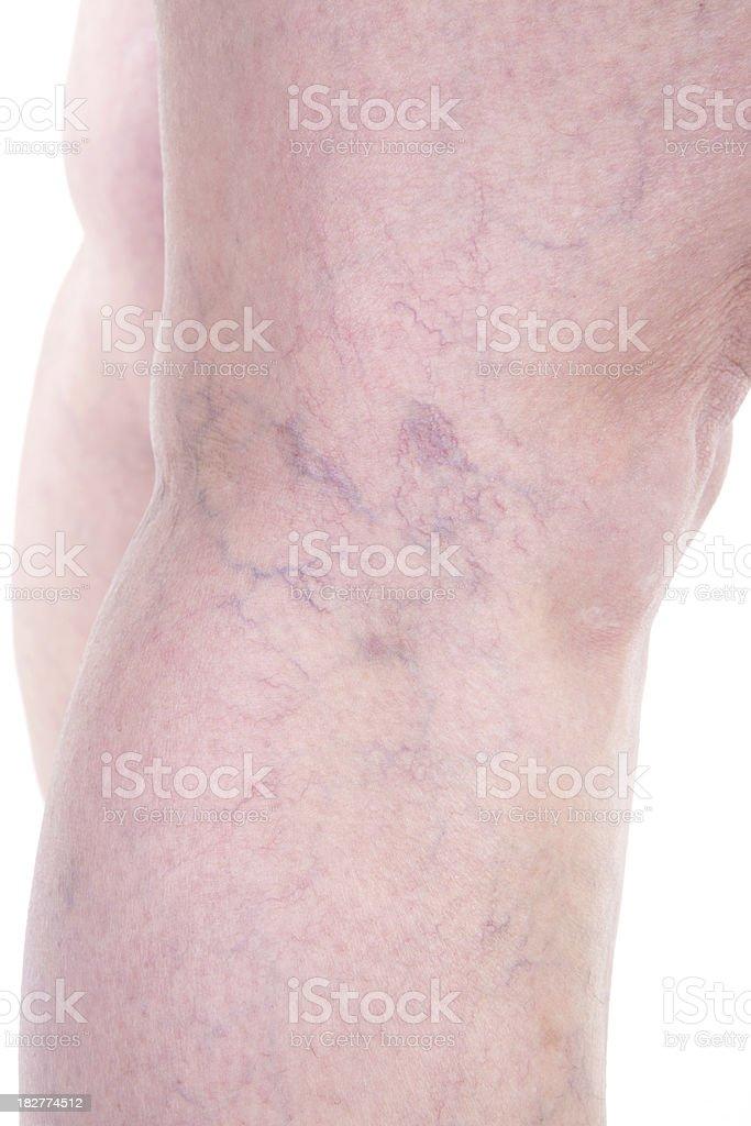 Varicose vein on leg. royalty-free stock photo