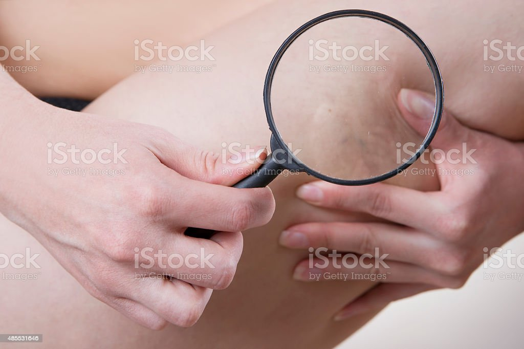 Varicose veins close up stock photo