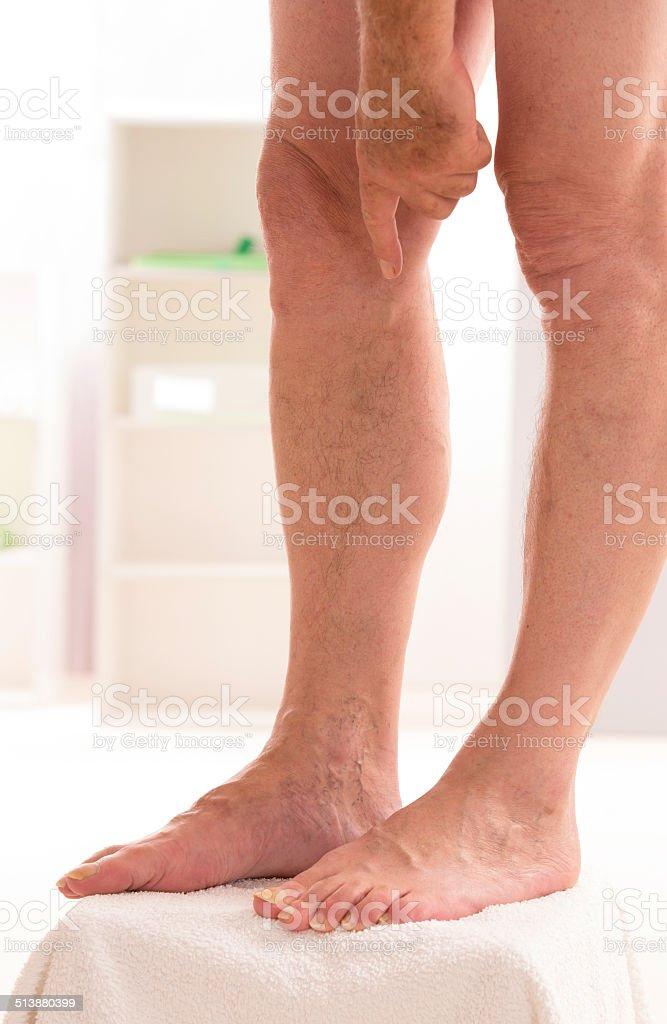 Varicose veins closeup, foot on modular bath step stock photo