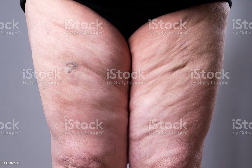 Varicose veins closeup. Thick female legs stock photo