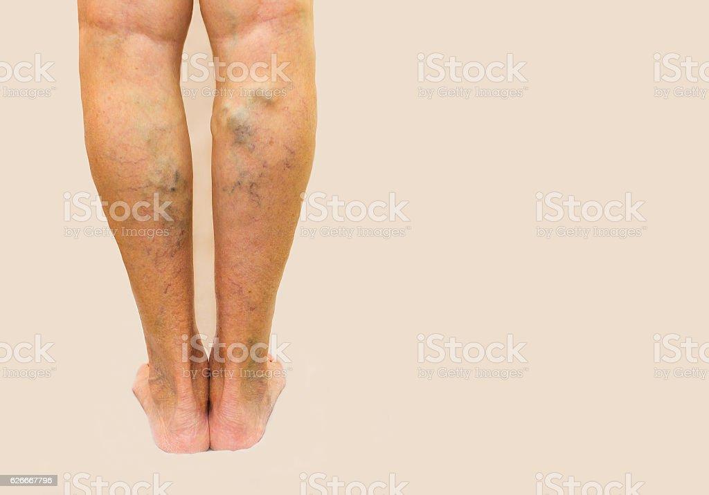 Varicose veins on a female legs stock photo