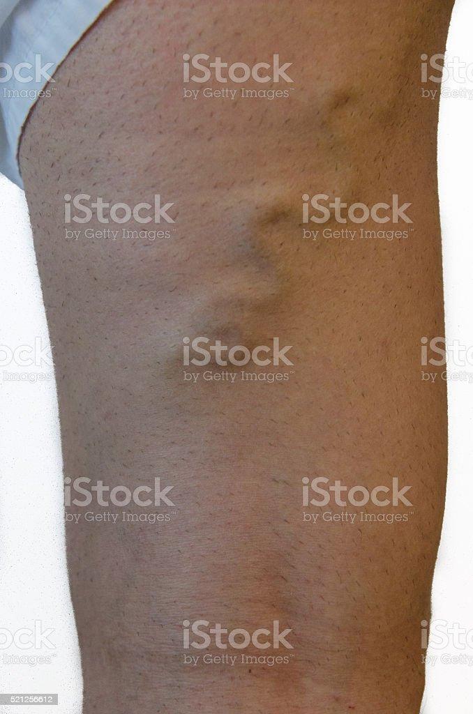 Varicose veins on a leg. stock photo