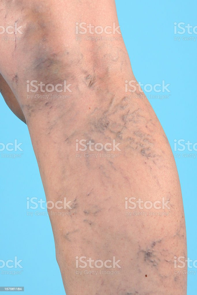 Varicose Veins on leg royalty-free stock photo