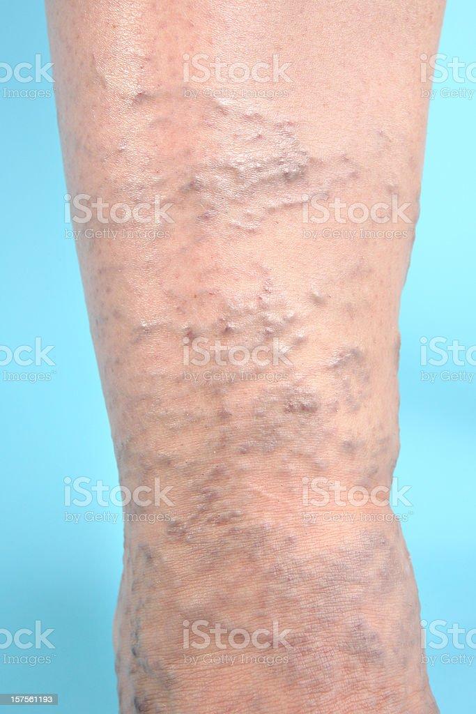 Varicose Veins on leg royalty-free stock photo
