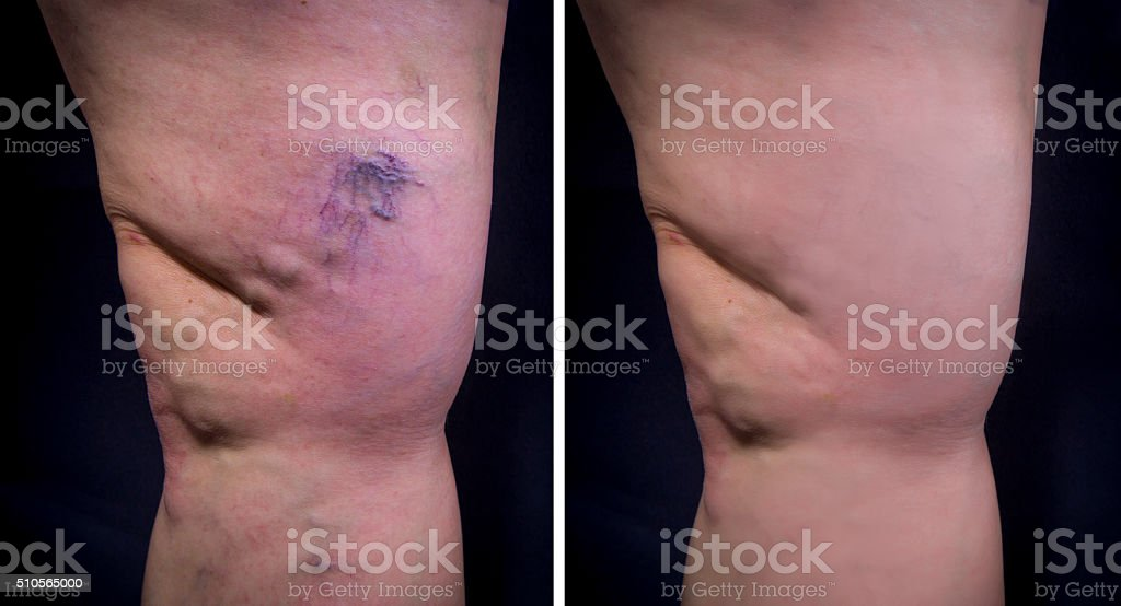 Varicose veins stock photo