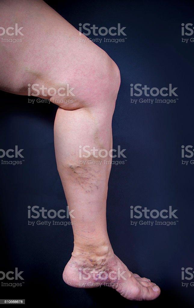 Varicose veins royalty-free stock photo