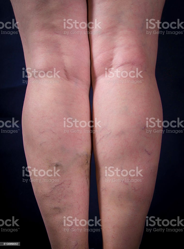 Varicose veins royalty-free stock photo