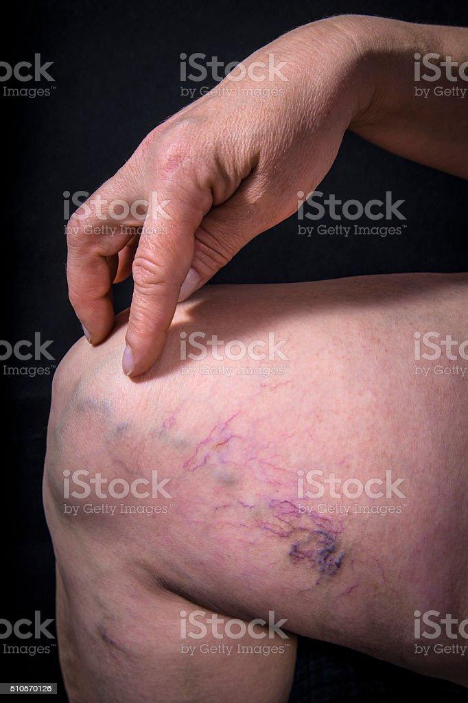 Varicose veins stock photo