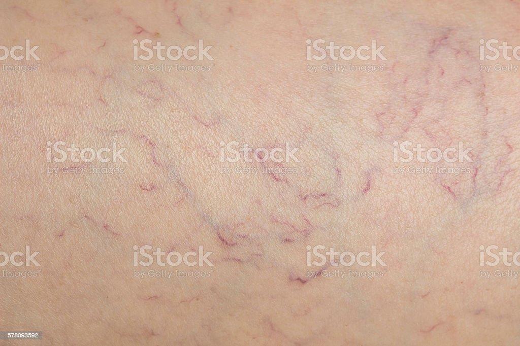 Varicose veins under woman skin stock photo