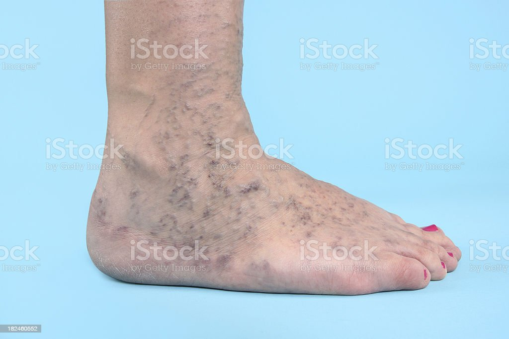 Varicose Vien on foot royalty-free stock photo