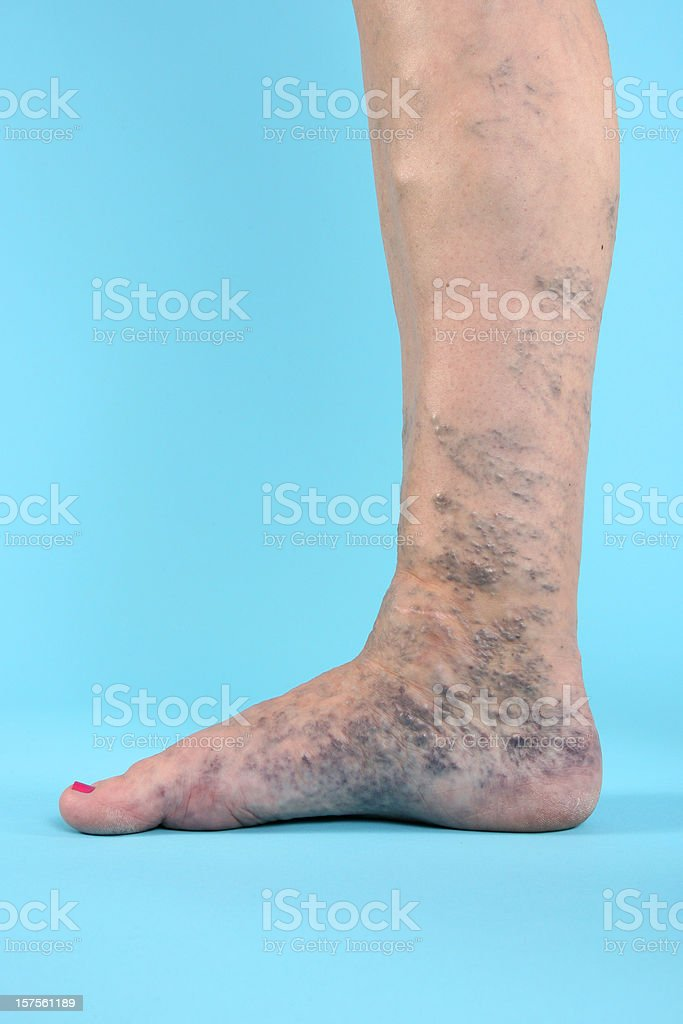 Varicose Vien on leg and foot royalty-free stock photo