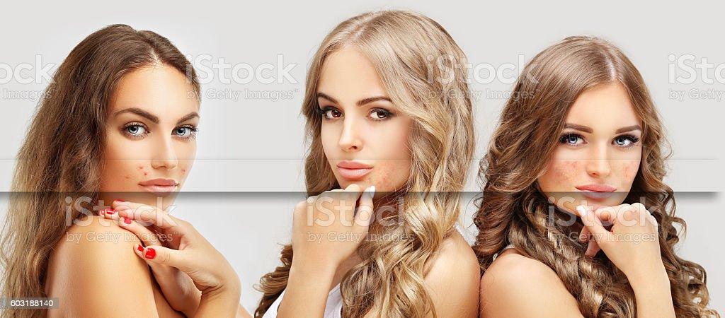 Various skin problems. Freckles, acne, pigmentation stock photo
