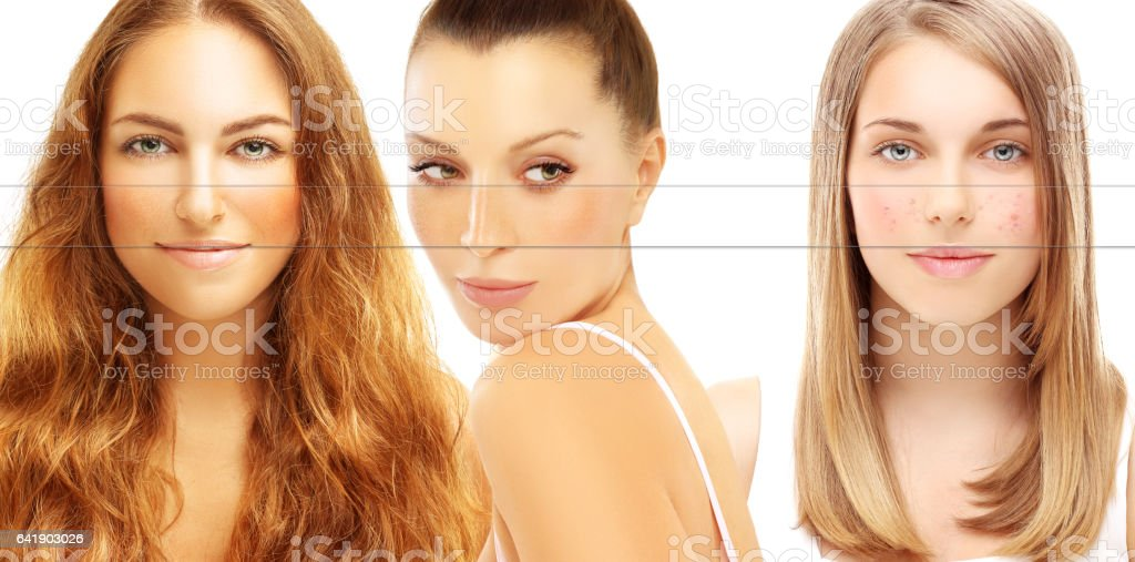Various skin problems.Portrait of beautiful woman  with problem and clear skin stock photo