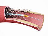Vascular stent inside the vein