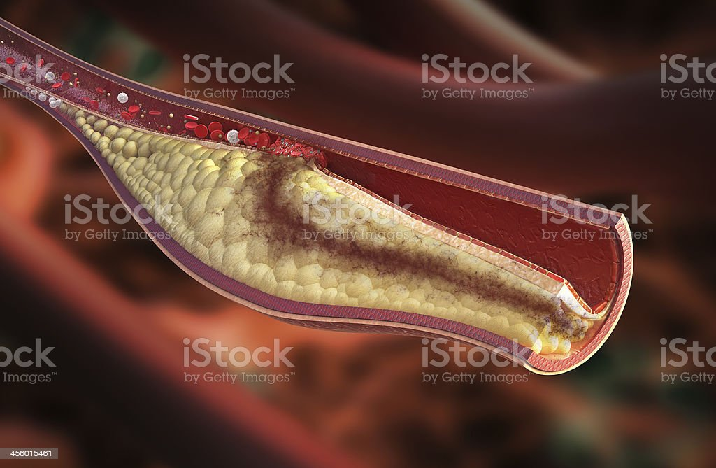 Vein - atherosclerotic plaque development stock photo