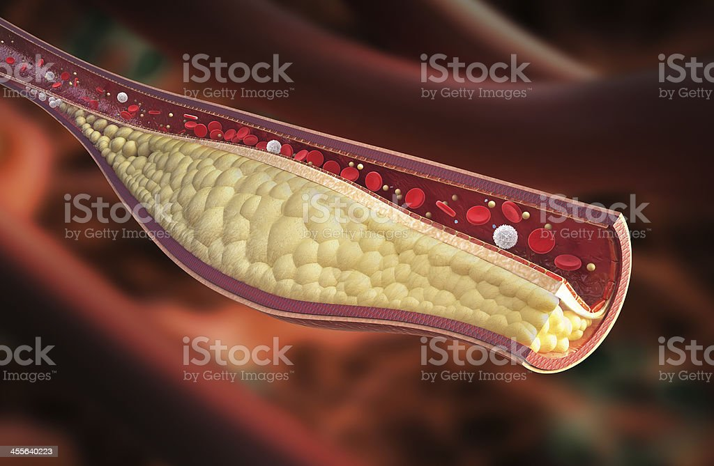 Stable atherosclerotic plaque stock photo