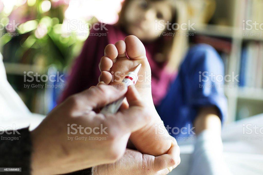 Verruca treatment stock photo