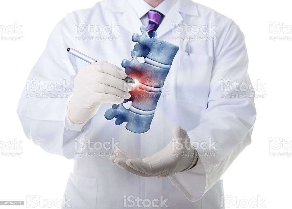 Vertebrae illness stock photo