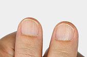 Vertical ridges on the fingernails