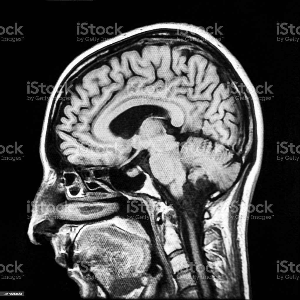 Vertical section of human brain MRI scan stock photo