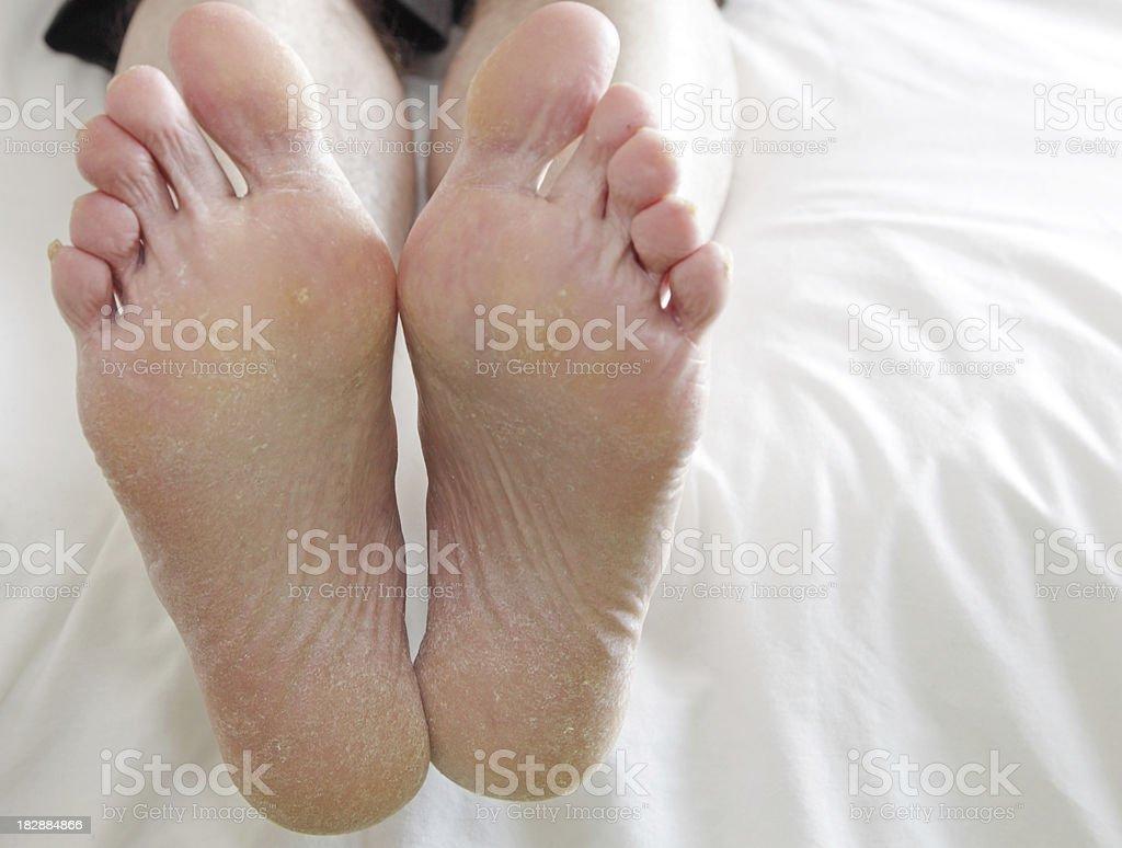 very dry feet stock photo