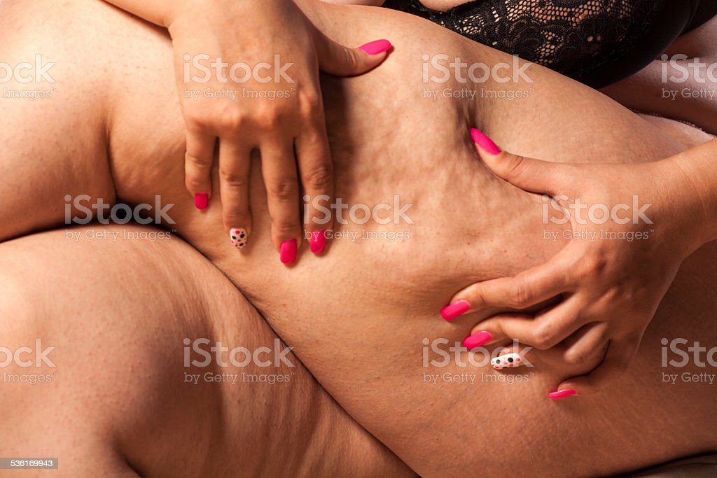 Very fat woman pinching her leg with her fingers stock photo