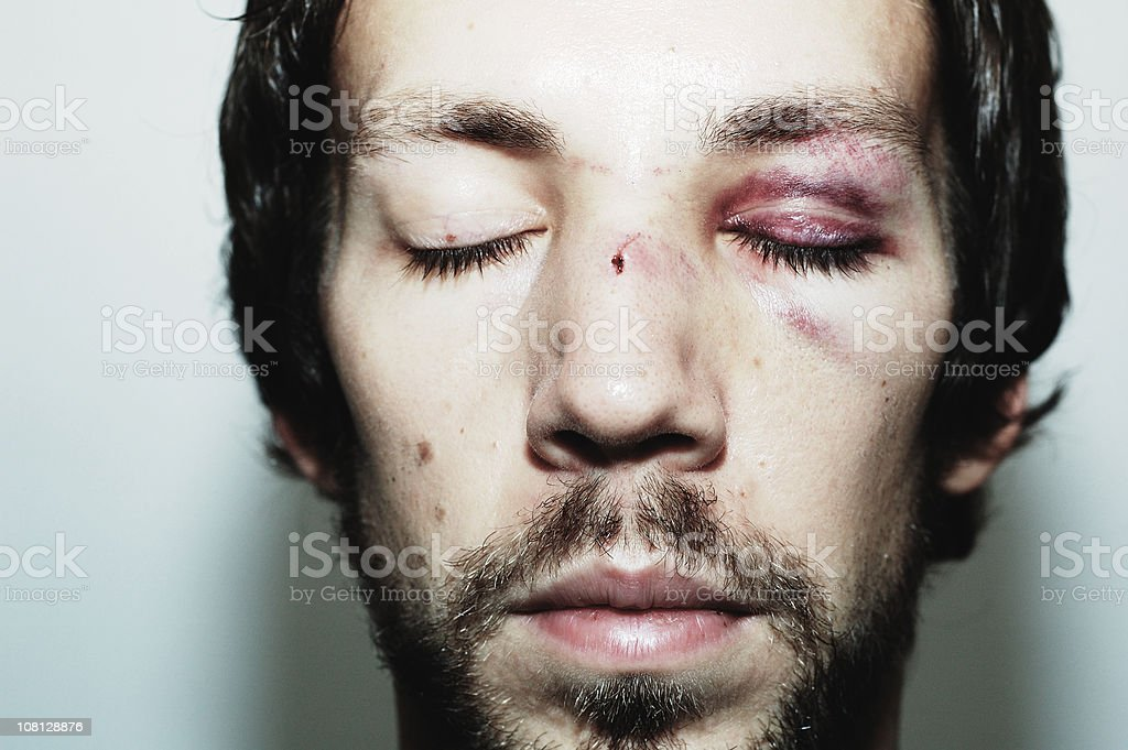 Victim of Assault stock photo