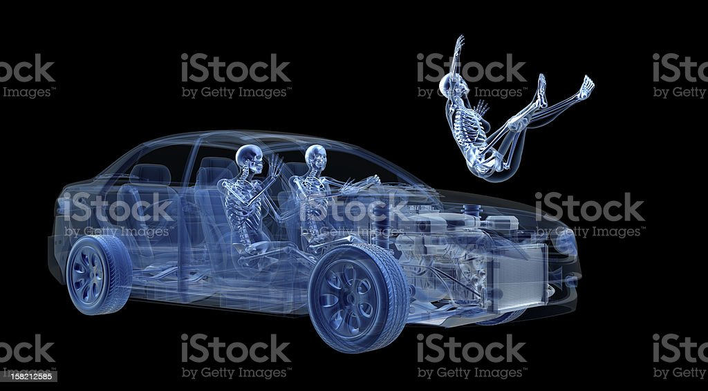 View car accident in X-ray stock photo