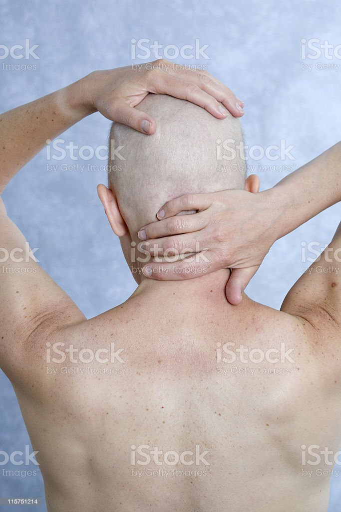View from behind of cancer patient's bald head and shoulders. royalty-free stock photo
