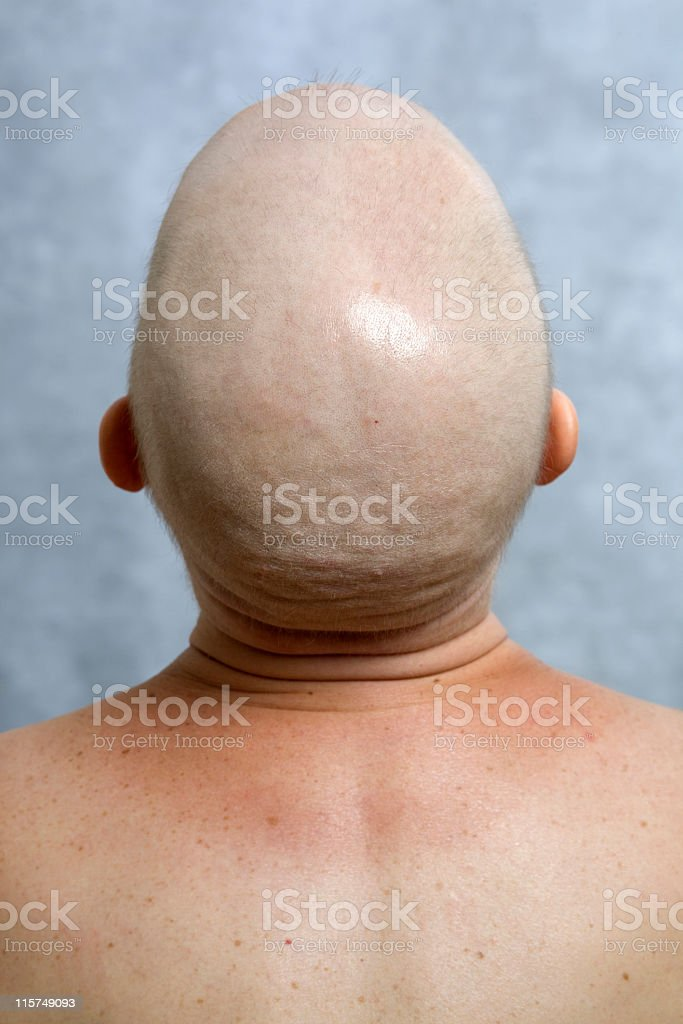 View from behind of  woman's bald head and bare shoulders. stock photo