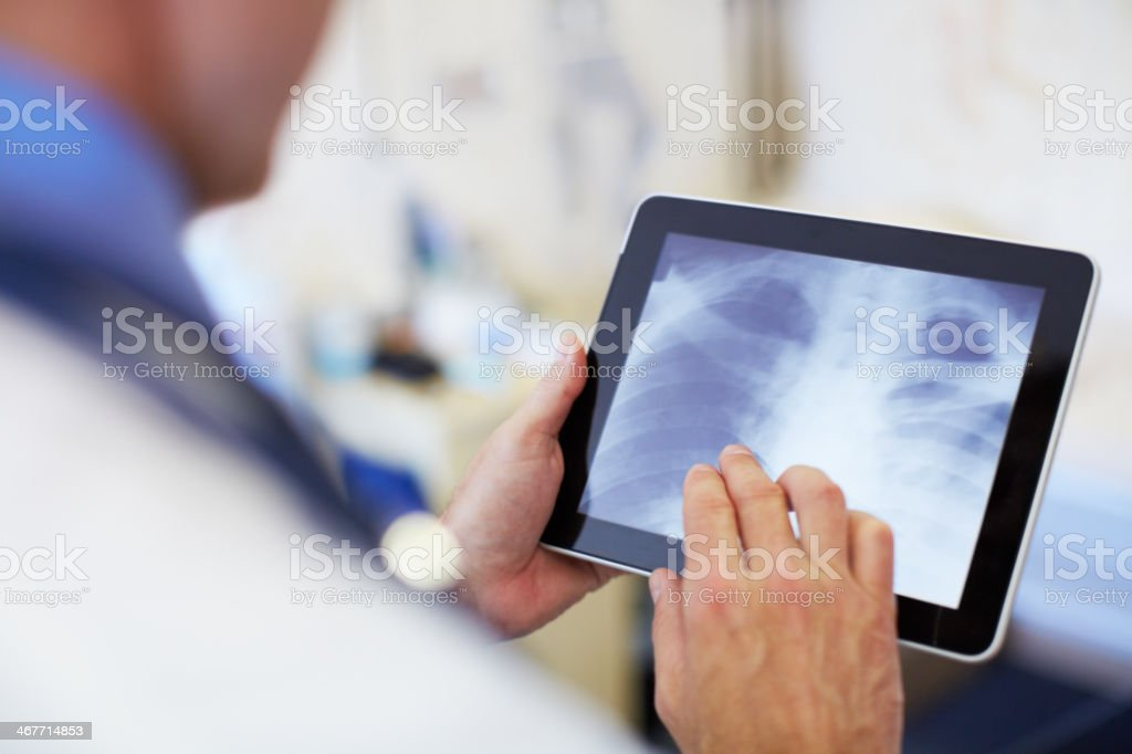 Viewing x-rays at a mere touch stock photo