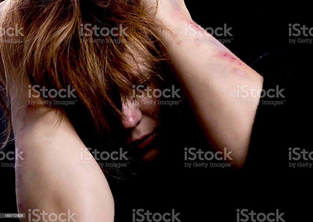 Violence victim royalty-free stock photo