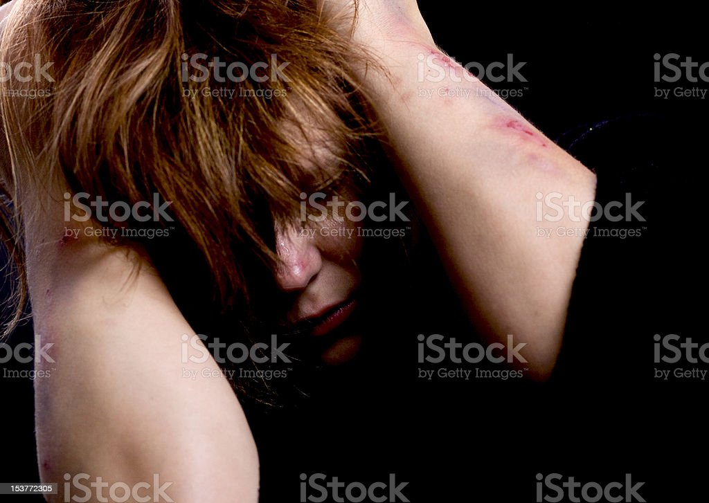 Violence victim stock photo