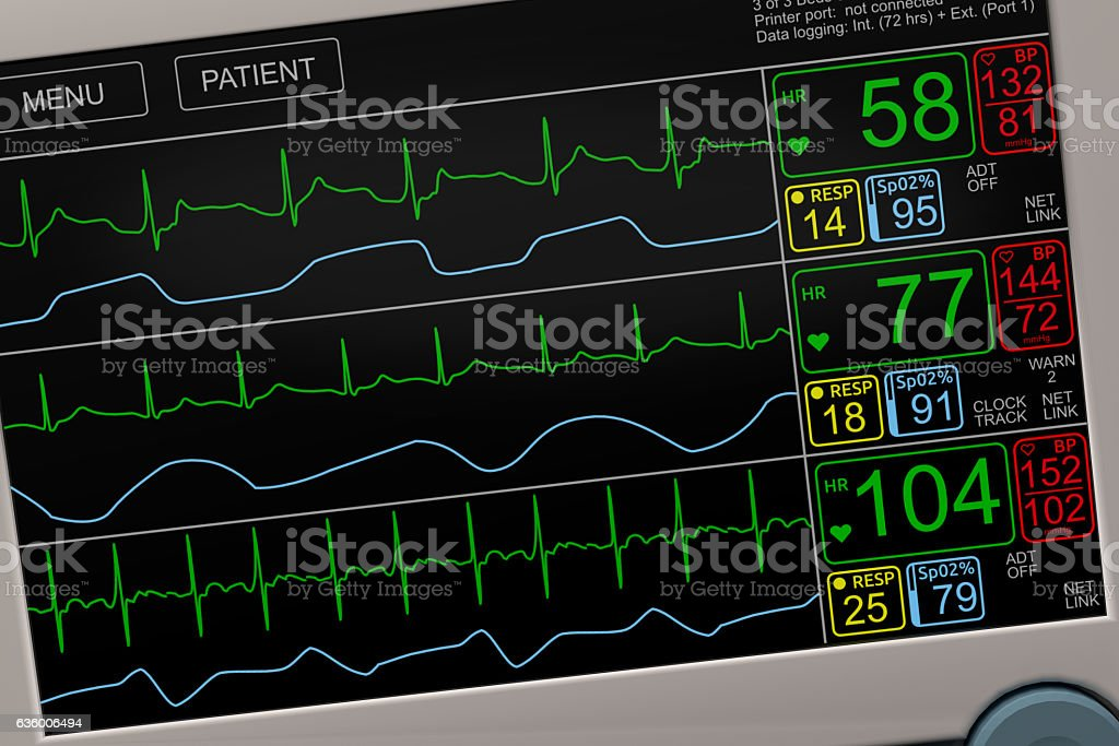 Vital Signs ICU Monitor Closeup stock photo