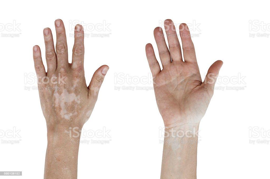 Vitiligo stock photo