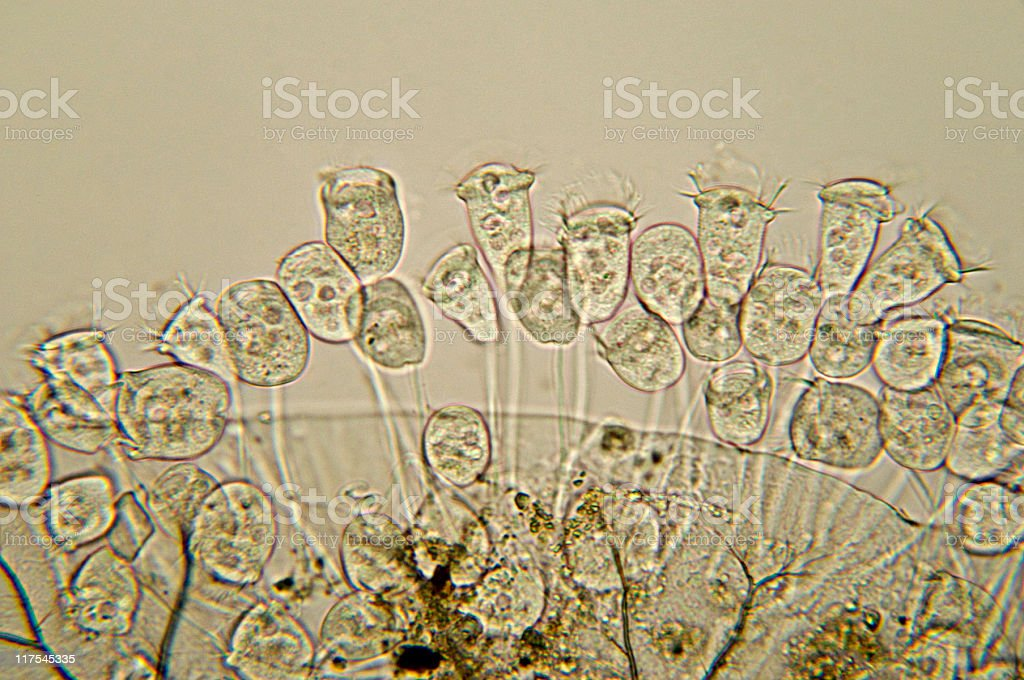 Vorticella species micrograph stock photo