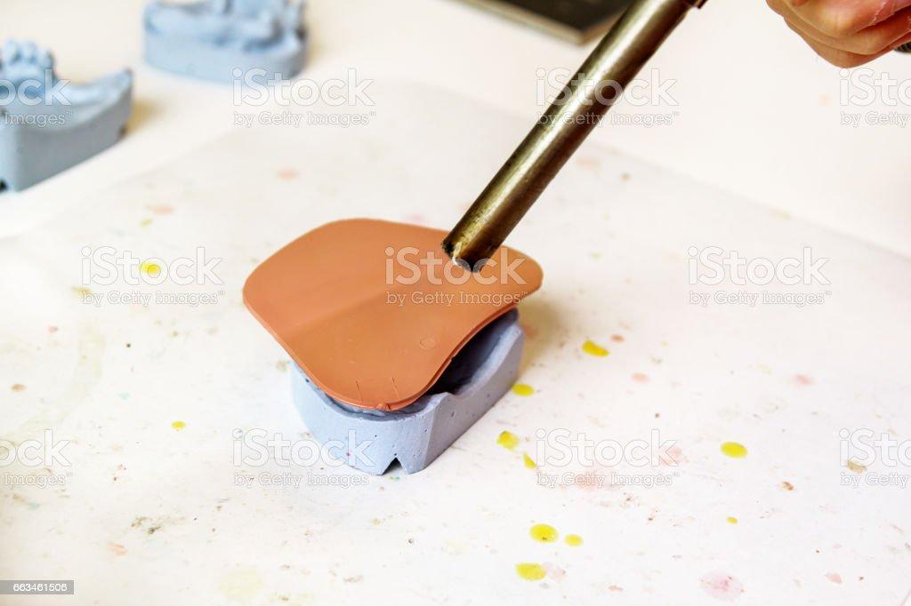 Warming of Shellac base plates. Dentures. Dental prosthesis, dentures, prosthetics work. Dental technician in process of making dentures. Warming of Shellac base plates over the plaster model. stock photo