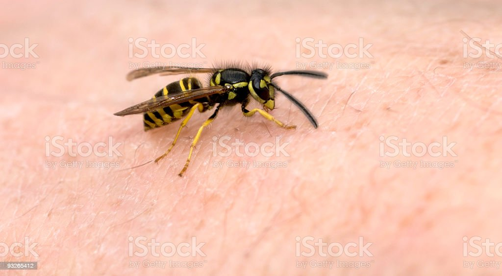 wasp on hand skin stock photo