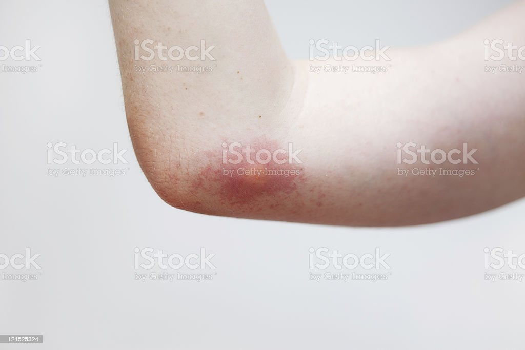 Wasp Sting stock photo