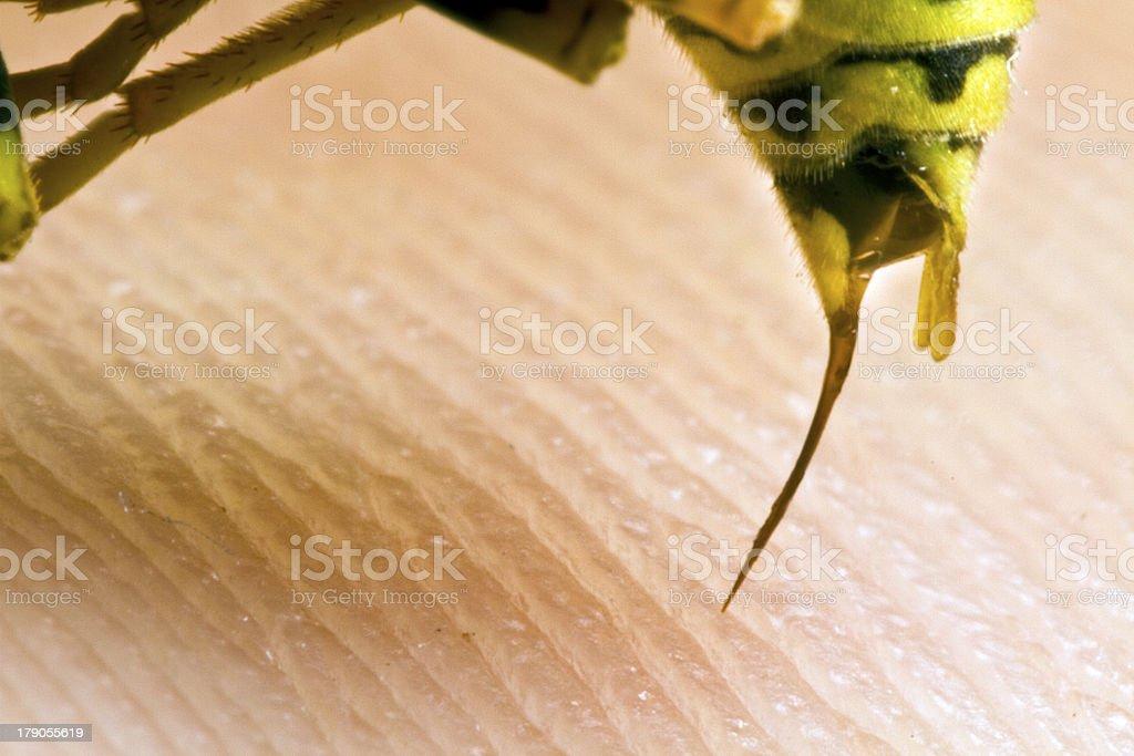 wasp stinging a human stock photo