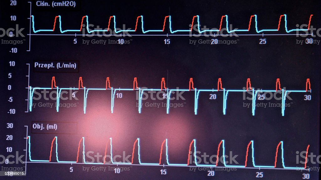 EKG ECG waveform diagnosis. Recording heart rhythm electrical activity. stock photo