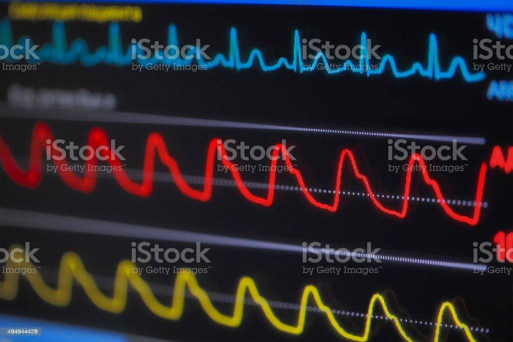 Waves ECG on monitor in perspective stock photo