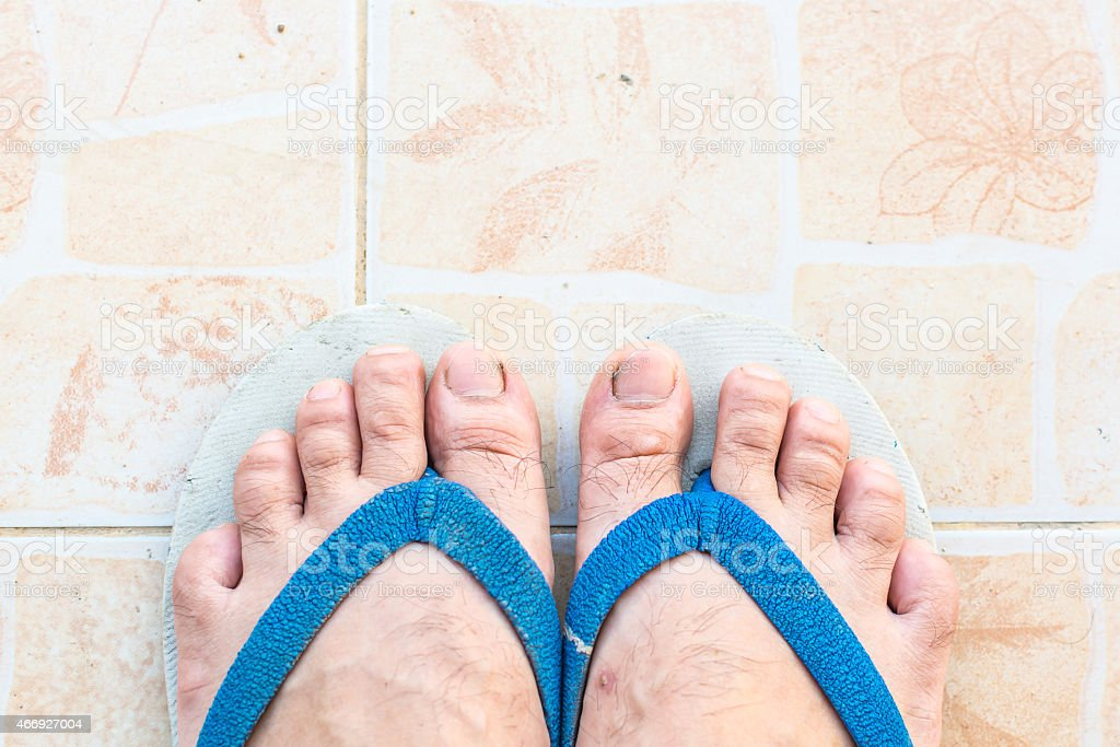 Wear sandals, Foot with dirty toenails. stock photo