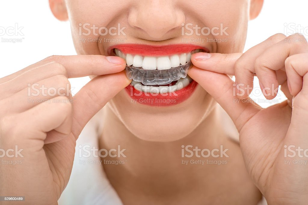 Wearing orthodontic silicone trainer stock photo