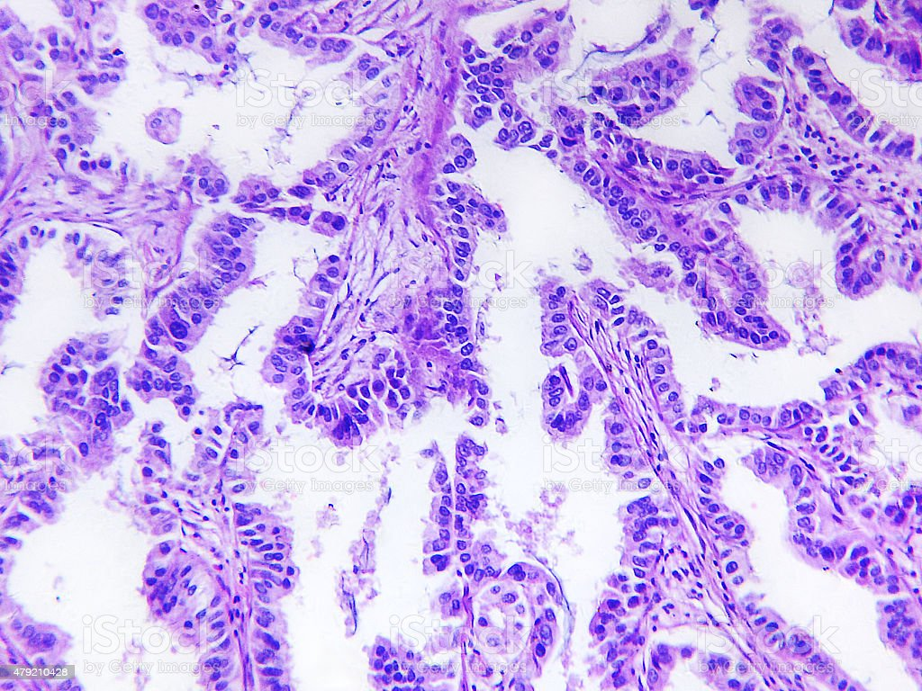 Well differentiated adenocarcinoma of a human stock photo