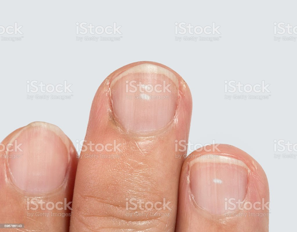 White spots on fingernails stock photo