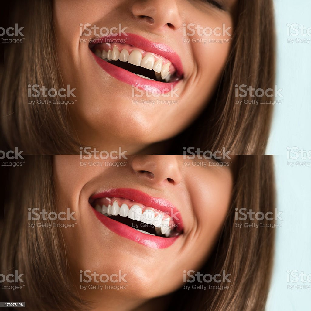 Whitening - bleaching treatment, before and after stock photo