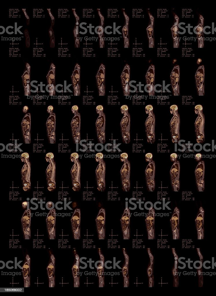Whole Body Pet-CT Scan Side View stock photo