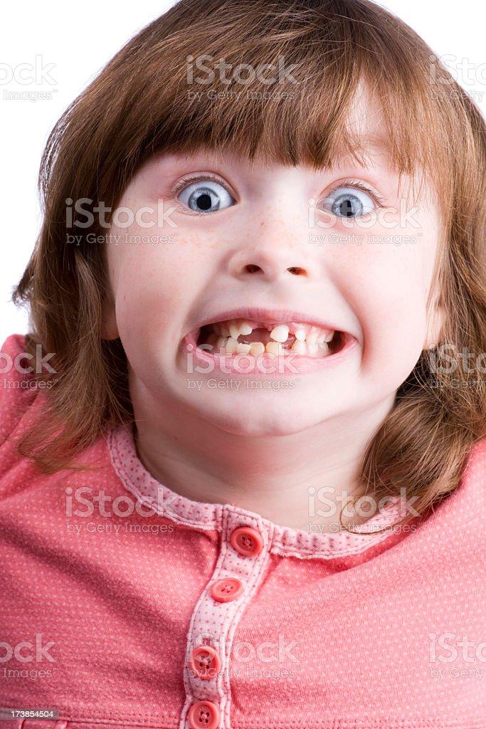 Wild little girl with loose teeth stock photo