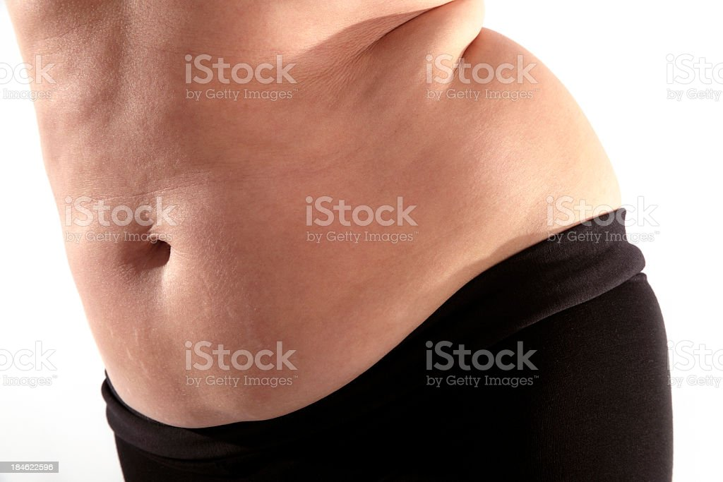 woman and fat stock photo